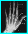 louisville orthopedics, arthroscopy