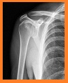 rotator cuff tear, louisville orthopedics
