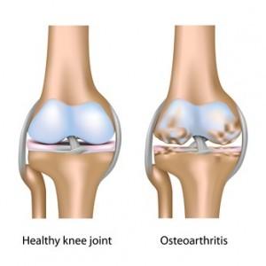 osteoarthritis-in-knee
