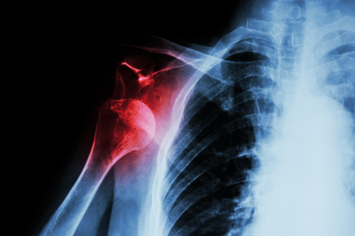 Shoulder Dislocation Research News