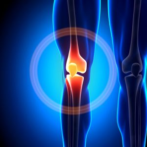 preparing for knee replacement