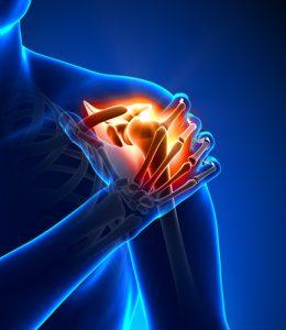 High Cholesterol and rotator cuff repair