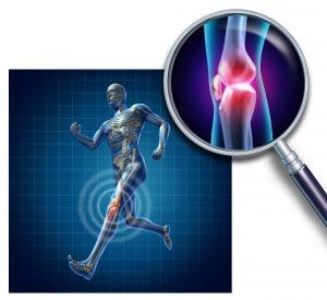 Sport Injury FAQs