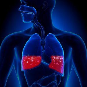 pulmonary edema