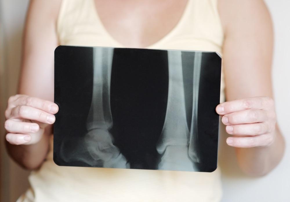 Bone Marrow Edema: Understanding What It Is - Orthopaedic
