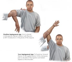 Imaging demonstrating the key examination tests for a rotator cuff tear